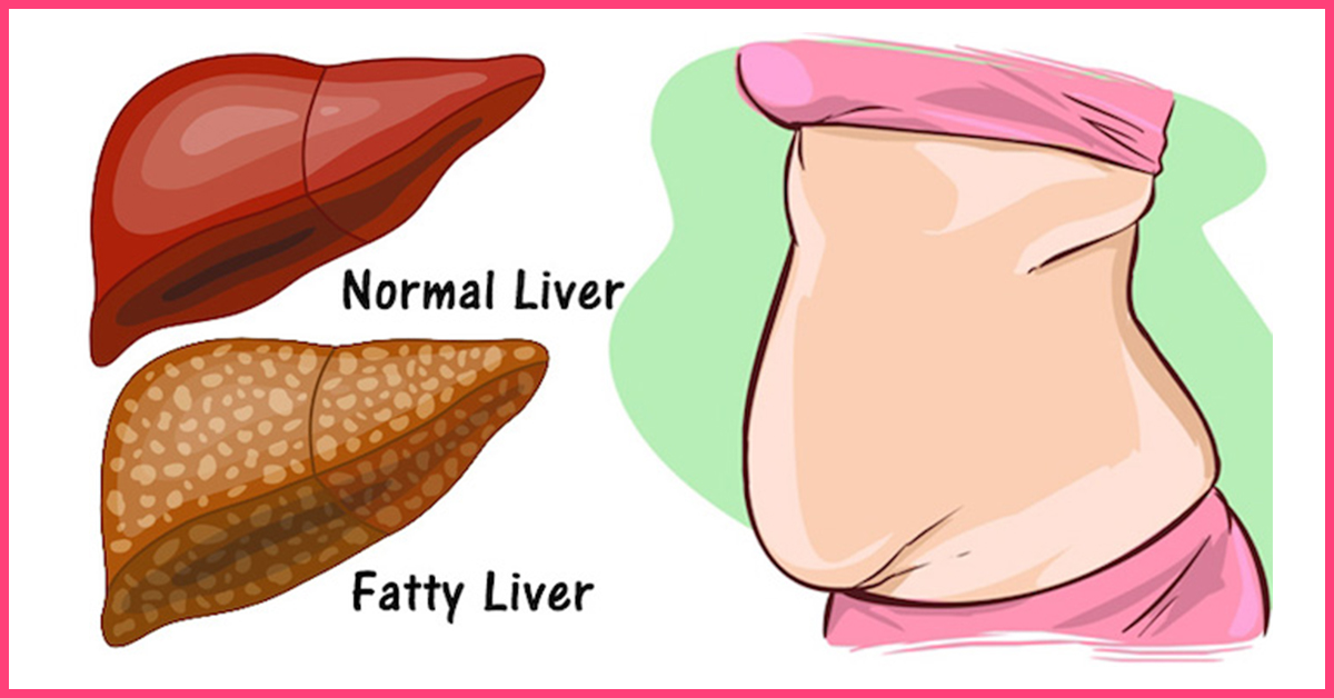Image result for healthy liver